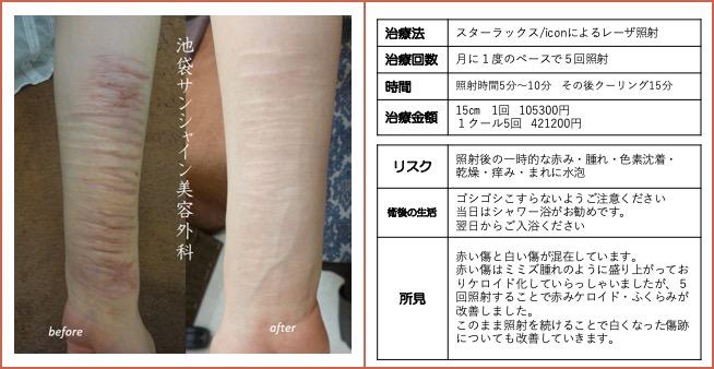 左上腕全体の傷跡治療