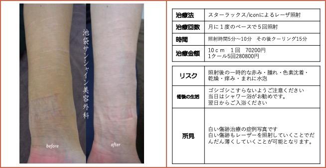 左手首の傷跡治療