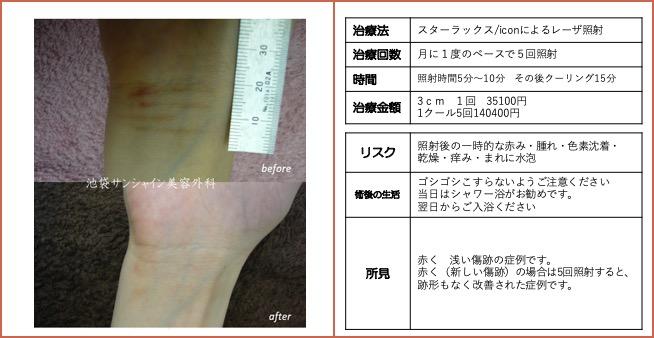 右手首の傷跡治療
