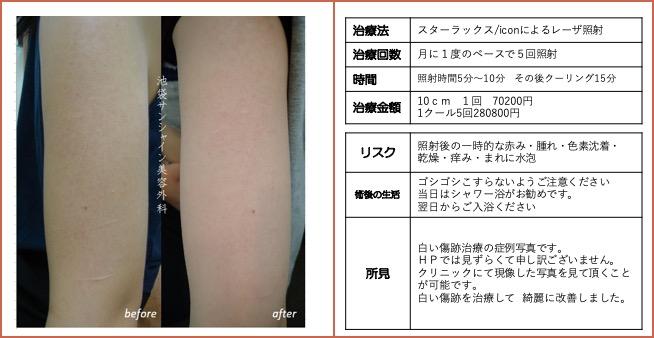 右上腕の傷跡治療