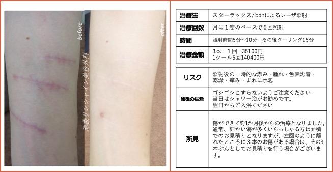 左上腕の傷跡治療