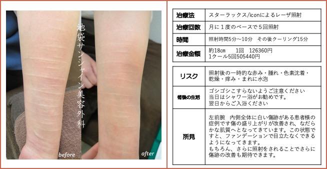 右前腕内側の傷跡治療
