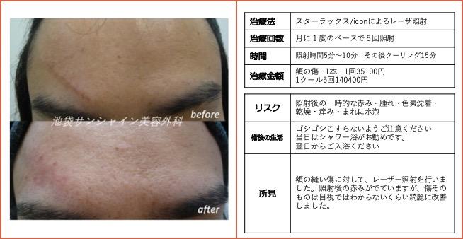 額の縫合手術の傷跡