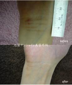 レーザー治療の症例写真