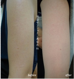 レザー治療の症例写真