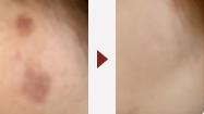 シミ・肝斑・くすみ治療