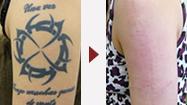 刺青除去・タトゥー除去