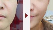 リフトアップ・小顔治療