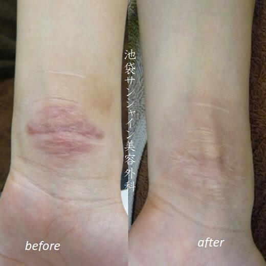 リストカット 左手首の傷跡治療