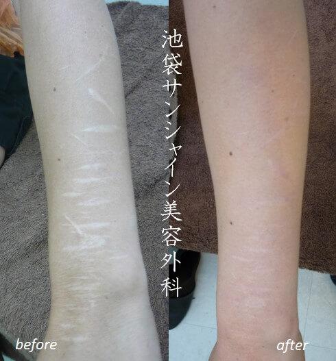 リストカット 右前腕内側の傷跡治療