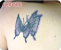 刺青・タトゥー除去 症例写真